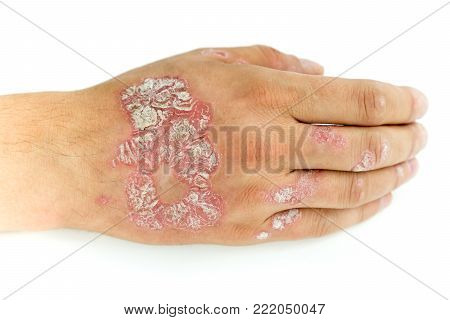 Psoriasis vulgaris and fungus on the man hand and fingers with plaque, rash and patches, isolated on white background. Autoimmune genetic disease.