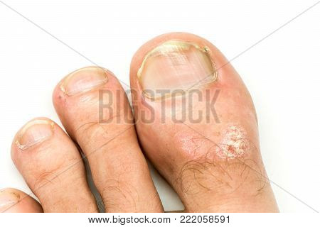 Closeup of Psoriasis vulgaris and fungus on the foot finger and nail with plaque, rash and patches, isolated on white background. Autoimmune genetic disease.