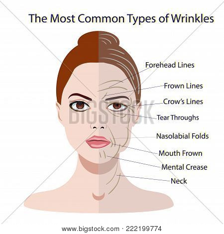 Common Types of Facial Wrinkles. cosmetic surgery. woman facial treatment isolated poster