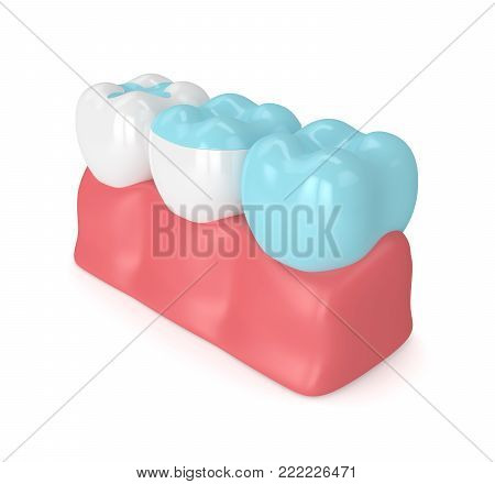 3D Render Of Teeth With Different Types Of Filling