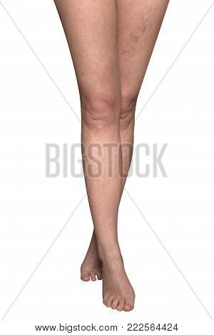 Slender female legs with protruding veins. On a white background.
