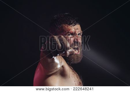 Bearded Man Show Bloody Fist On Black Background