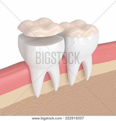 3D Render Of Teeth With Dental Onlay