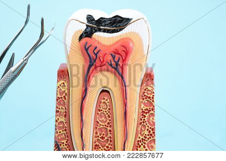 tools and tooth anatomy on blue background.