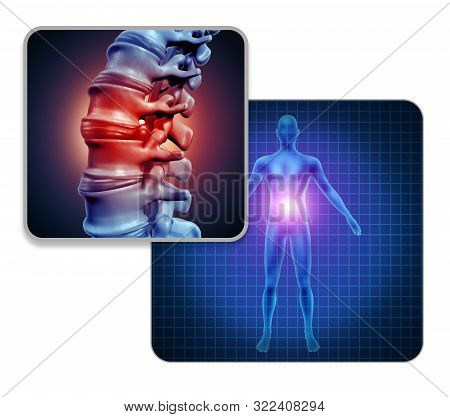 Human Back Joint Pain Concept As Skeleton And Muscle Anatomy Of The Body With Sore Spine Joints As A