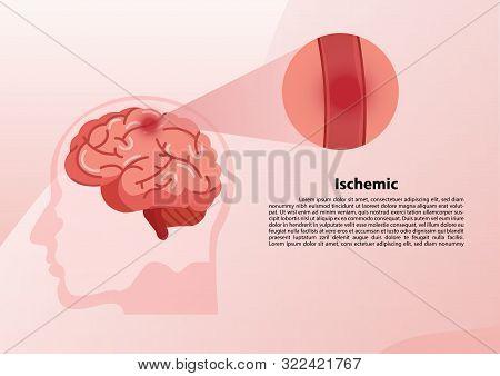 Stroke Disease, Ischemic, Atherosclerosis And Hemorrhagic. Scientific Medical Illustration Of Human