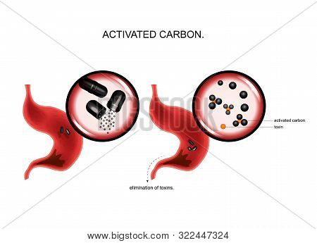 poster of vector illustration of the action of activated carbon on toxins in the stomach.
