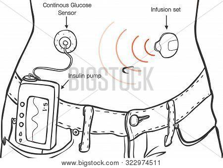Insulin Pumps For Diabetes Patients Vector İllustration