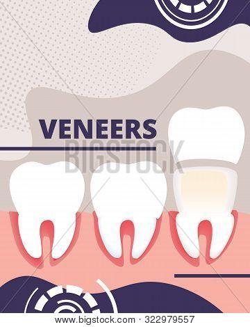 Dental Veneers Aid Vertical Banner, Educational Infographics Poster For Medical Presentation. Hygien