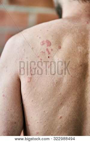 Skin Imperfection. Skin Allergy. Urticaria Disease. Red Spots On The Skin. Close-up.