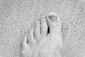 Injury of toe nail. Effects wearing uncomfortable footwear. Nail hematoma. Take care of your feet. Pedicure and podiatry. Treatment of bruise and fracture. Medicine concept. Trauma foot toes nails. poster