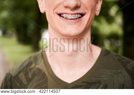 Close Up Of Cheerful Man With Orthodontic Brackets On Teeth Standing On The Street. Joyful Male Pati