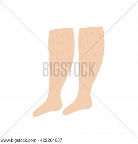 Women's Unshaven Legs. Feminism, Women's Freedom Of Choice. Design Of Posters Of Feminism. Body Posi