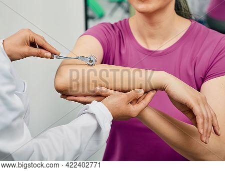 Neurology. Check-up Woman Hand Using Neurological Needle Wheel In A Neurological Clinic, Close-up