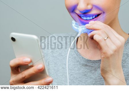 A Young Woman Is Engaged In Home Teeth Whitening. Complex For Teeth Whitening With Uv Lamp