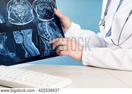 Female Doctors Hand Pointing At X-ray Medical Imaging At A Shoulder Condition