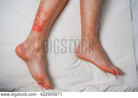 Male Leg, Itching And Red Rash Caused By Insect Bites And Bites. Health And Medical Surveillance And