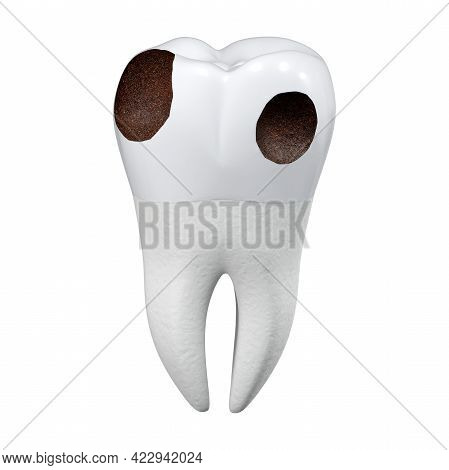 Carious Tooth On A White Background. Damaged Enamel On A Large Molar. Dental Theme. 3d Rendering.
