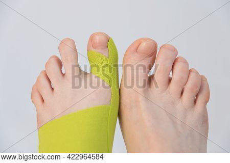 Correction Of The Big Toe. Haliux Valgus. Taping With Flat Feet. Taping When Fingers Are Deformed. I