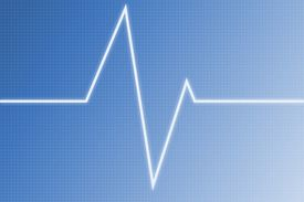 Cardiogram Wave - Radio Wave