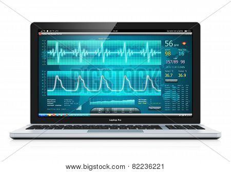 Laptop or notebook computer PC with medical cardiologic diagnostic test software on screen isolated on white background poster