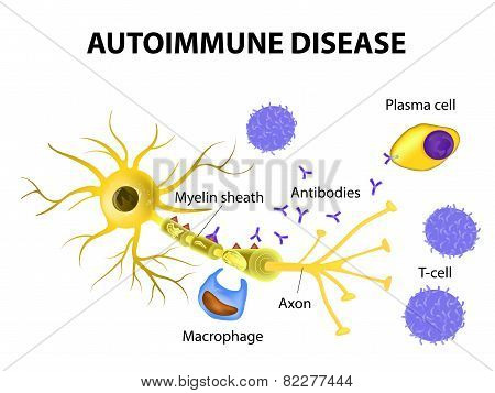 Autoimmune Disease. Multiple sclerosis - Immune cells attack the myelin sheath that surrounds nerve cells. Antibodies initiate myelin injury (macrophage activation). poster