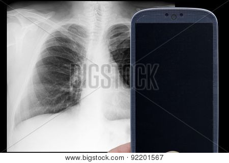 Smatrphone and male chest x-ray on black background. Idea for medicine app, xray tricks games, and others.