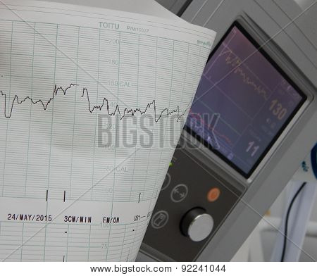 Cardiography of fetal heart rate