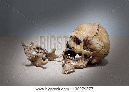 Tooth With Caries , Broken Teeth Human Skull On Wood Background. - Still Life.