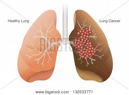 Comparison between healthy lung and cancer lung isolated on white background.