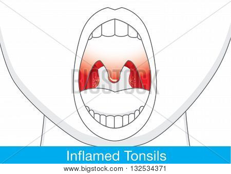 Showing Inflamed tonsils by open mouth. This illustration about health and medical.