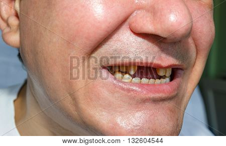 Man Without And Peeled Teeth