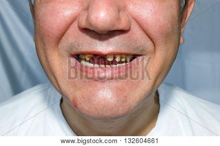 Men Smile Peeled Upper Teeth