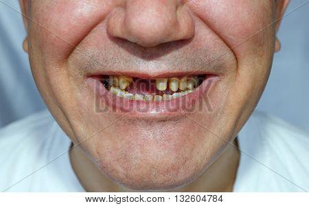Men With Peeled Teeth