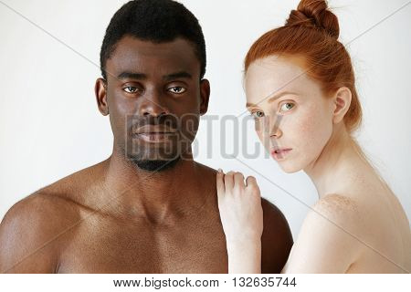 Pure Unconditional Love: Beautiful Caucasian Young Woman With Red Hair And Freckles Embracing Her Na