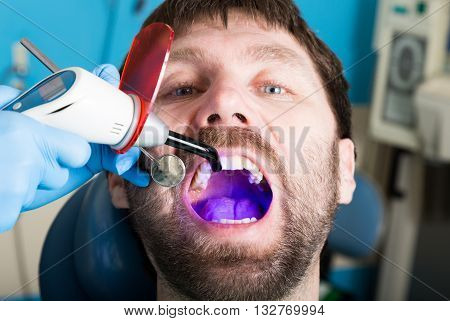 The reception was at the female dentist. Doctor examines the oral cavity on tooth decay. Caries protection. Tooth decay treatment. Dentist working with dental polymerization lamp in oral cavity.