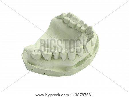 Dental plaster mold isolated on white background