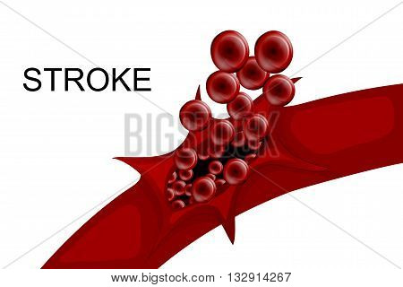 poster of illustration of a rupture of the vessel. hemorrhagic stroke. insult