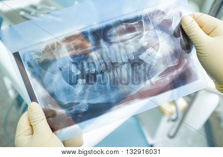X-ray panoramic picture of human teeth. Dentist holds x-ray panoramic picture in his hands in yellow medical gloves. Dental x-ray panoramic picture at dentists surgery