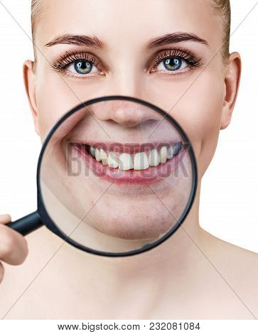 Woman With Magnifying Glass Present Teeth Before Whitening. Over White Background.