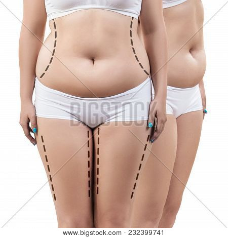 Fat Woman With Dotted Lines On Her Body. Lose Weight And Liposuction Cellulite Removal Concept.