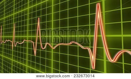 Ecg Line Graph, Heart Beating In Normal Sinus Rhythm, Healthcare And Medicine, Stock Footage