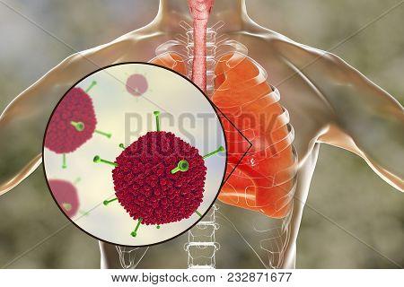 Adenovirus Infection, Adenoviruses In Human Lungs, 3d Illustration