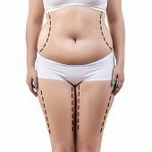 Fat woman with dotted lines on her body. Lose weight and liposuction cellulite removal concept. poster