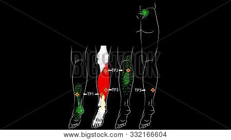 Soleus Muscle. Trigger Points And Reflected Leg Pain.