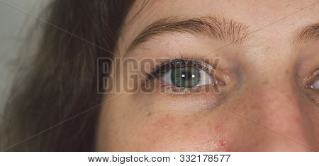 Woman With Under Eye Bag. Puffy Eye Of Girl Showing Eyes Bags. Womans Eye Close-up.