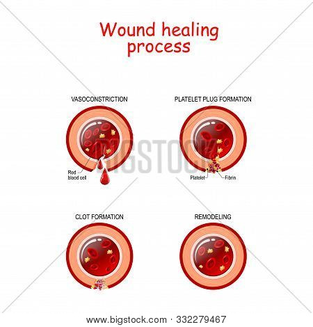 Phases Of The Wound Healing Process. Hemostasis, Inflammatory, Proliferative, Maturation And Remodel