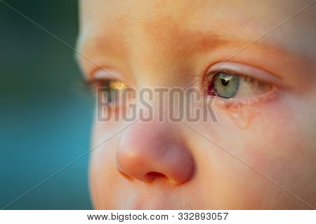Cry Baby With Sky Blue Eyes. Little Tender Baby Boy Crying. Eye Drop, Tear Drop Of Little Sweetheart