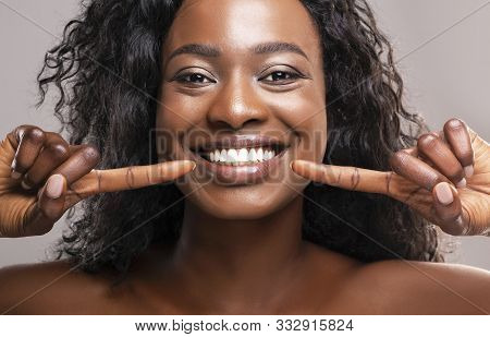 Teeth Alignment And Whitening Concept. Happy African American Girl Pointing At Her Wide Smile With T