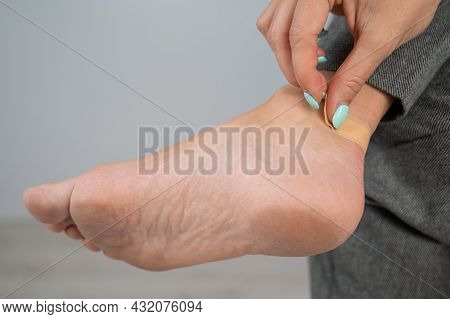 A Woman Seals A Corn On Her Leg With A Plaster. The Girl Rubbed Her Leg With Uncomfortable Shoes.